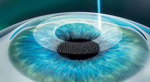laserová operácia oka